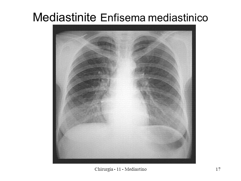 Mediastinite Enfisema mediastinico