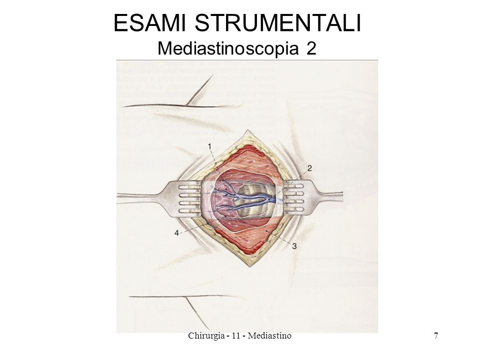 ESAMI STRUMENTALI Mediastinoscopia 2