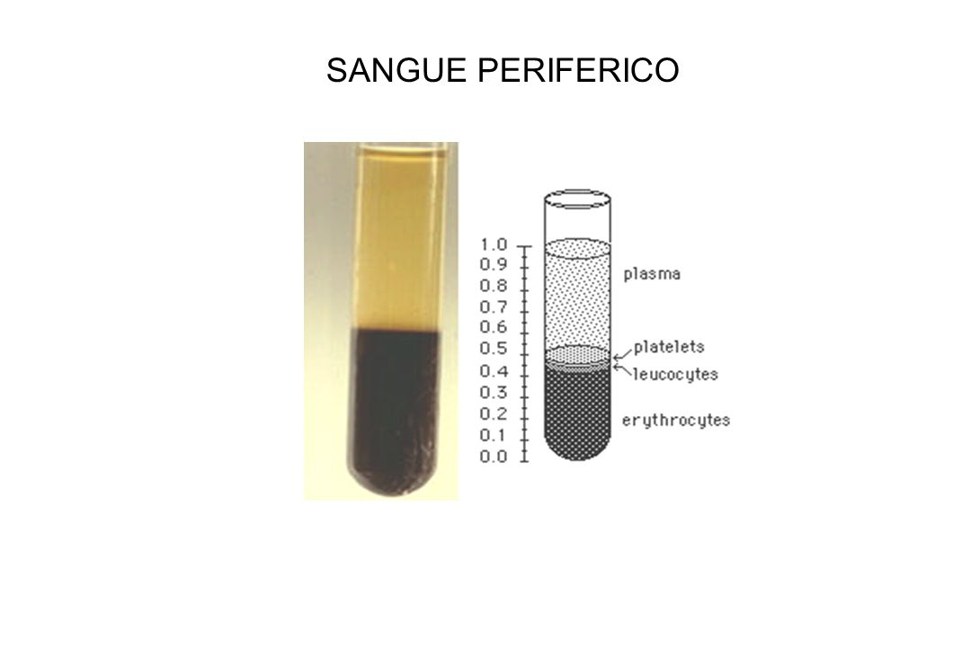 SANGUE PERIFERICO