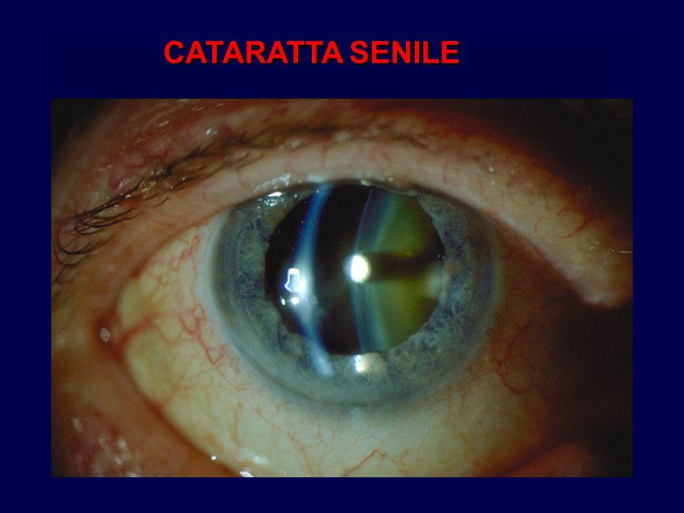CATARATTA SENILE