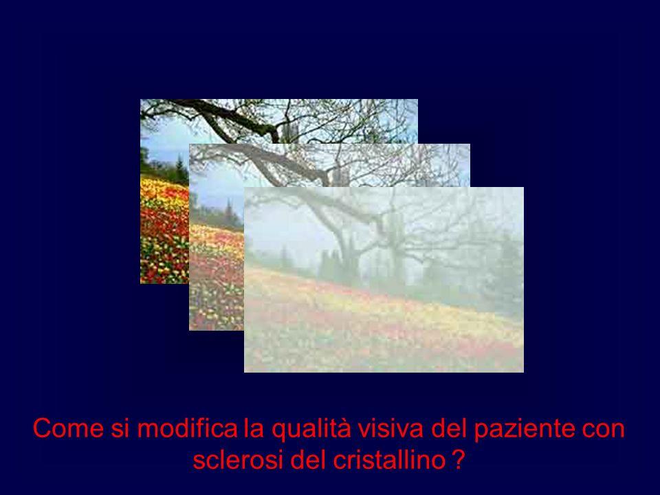Come si modifica la qualità visiva del paziente con sclerosi del cristallino
