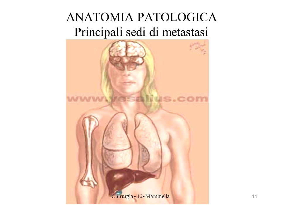 ANATOMIA PATOLOGICA Principali sedi di metastasi