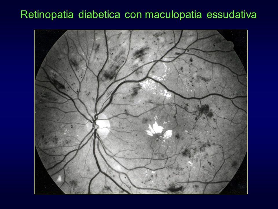 Retinopatia diabetica con maculopatia essudativa