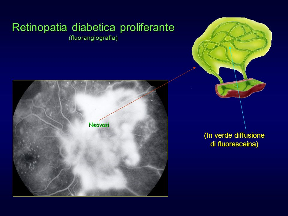 Retinopatia diabetica proliferante