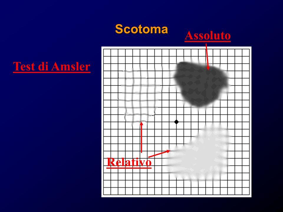 Scotoma Assoluto Test di Amsler Relativo