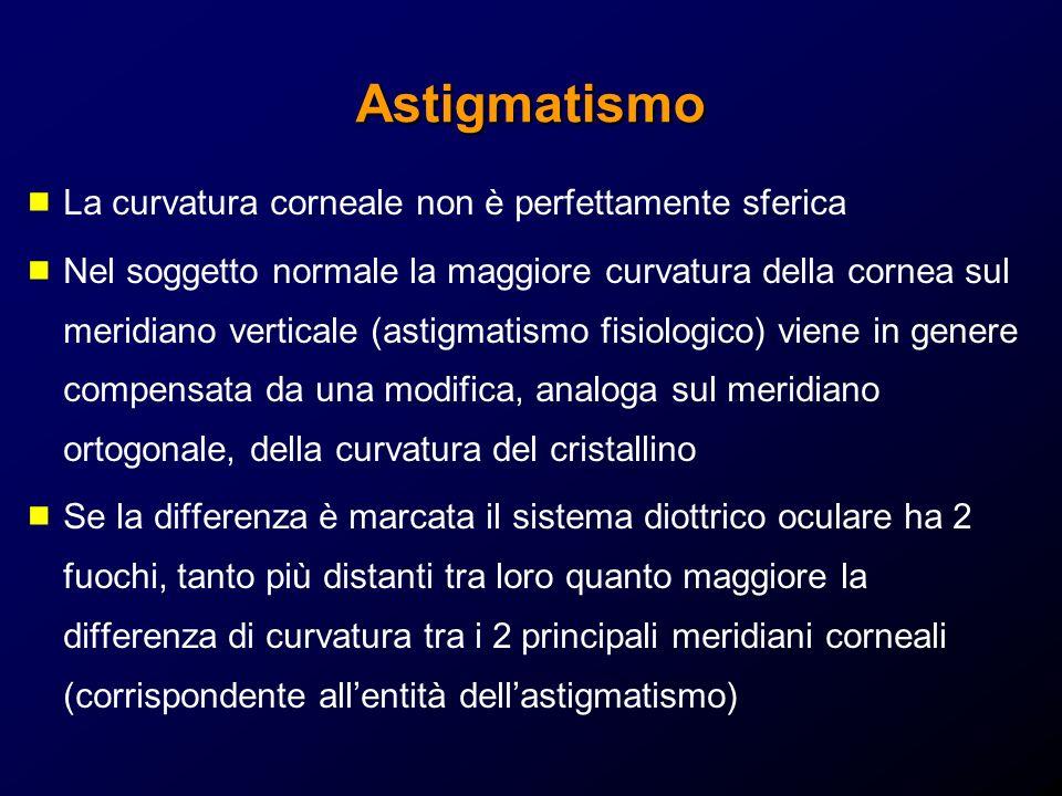 Astigmatismo La curvatura corneale non è perfettamente sferica