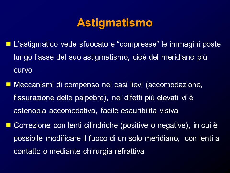Astigmatismo L'astigmatico vede sfuocato e compresse le immagini poste lungo l'asse del suo astigmatismo, cioè del meridiano più curvo.