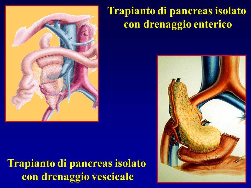 Trapianto di pancreas isolato con drenaggio enterico