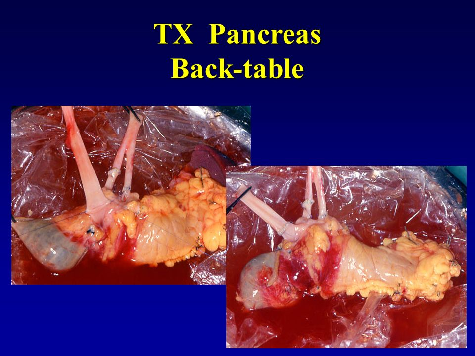 TX Pancreas Back-table