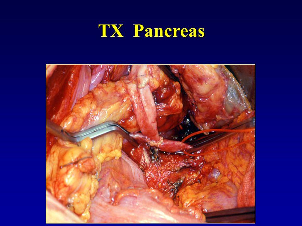 TX Pancreas