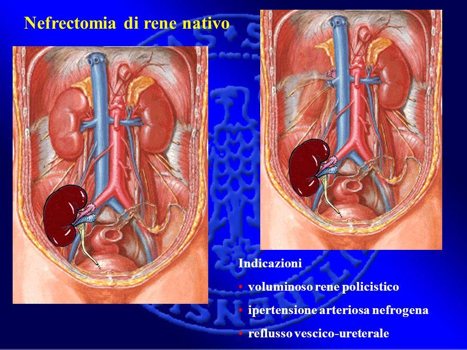 Nefrectomia di rene nativo