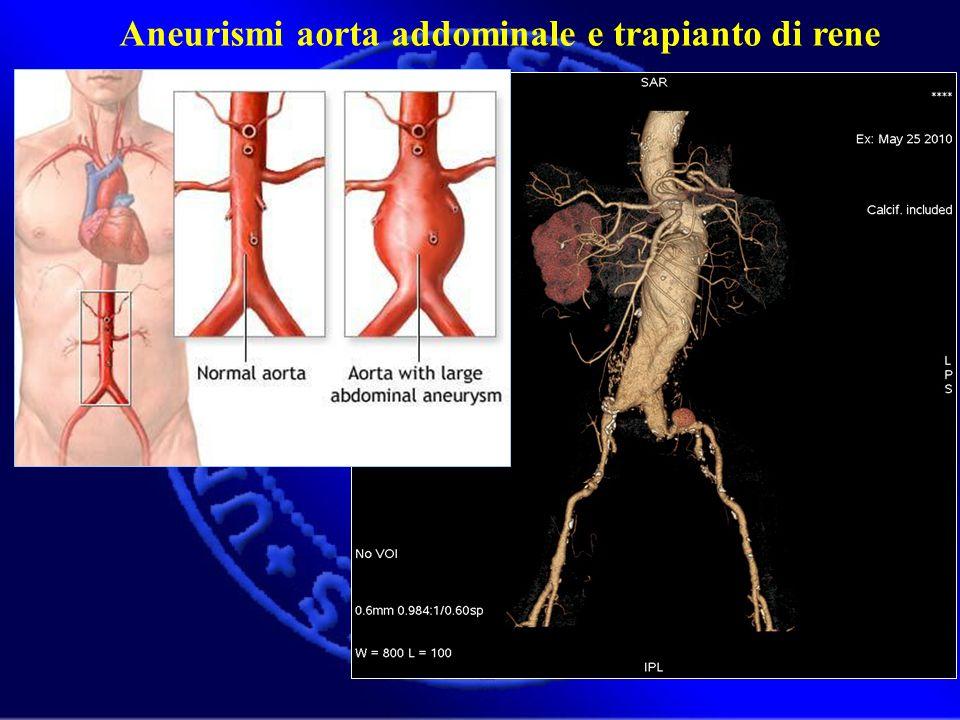 Aneurismi aorta addominale e trapianto di rene