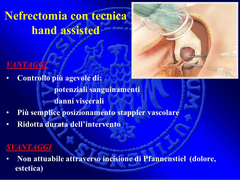 Nefrectomia con tecnica