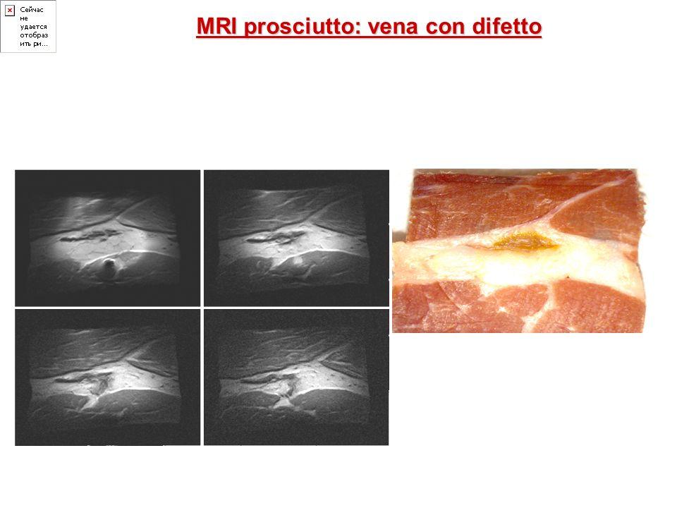 MRI prosciutto: vena con difetto