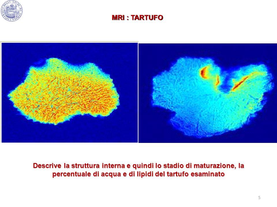 MRI : TARTUFODescrive la struttura interna e quindi lo stadio di maturazione, la percentuale di acqua e di lipidi del tartufo esaminato.