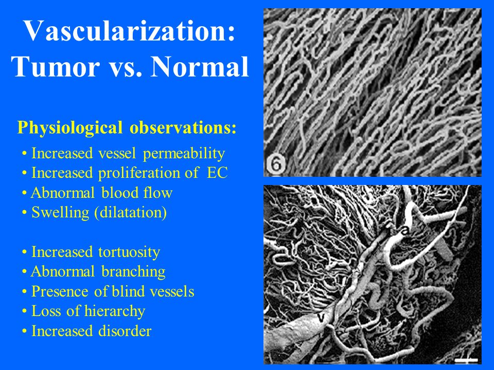 Vascularization: Tumor vs. Normal