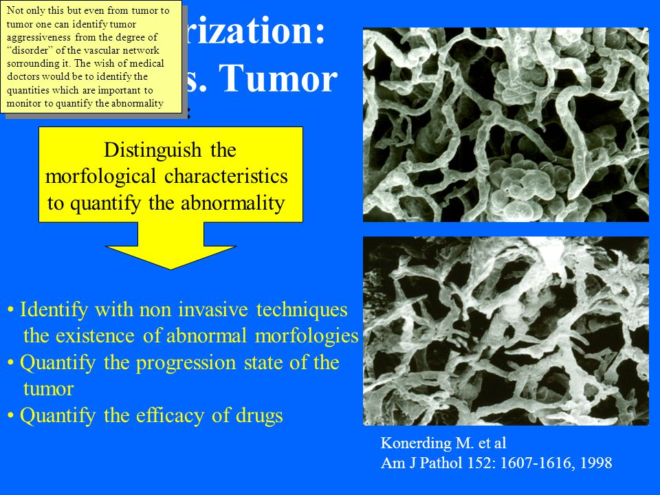 Vascularization: Tumor vs. Tumor