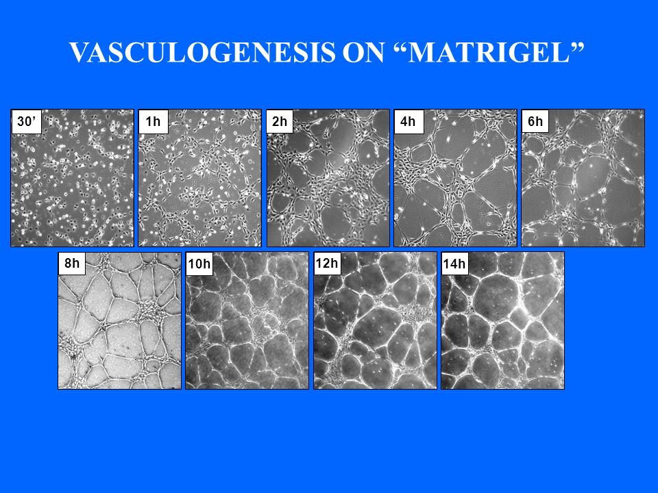 VASCULOGENESIS ON MATRIGEL