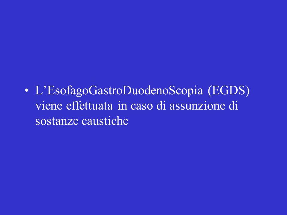 L'EsofagoGastroDuodenoScopia (EGDS) viene effettuata in caso di assunzione di sostanze caustiche