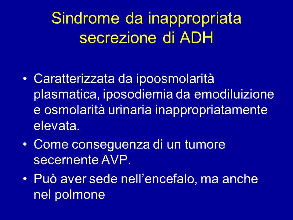 Sindrome da inappropriata secrezione di ADH