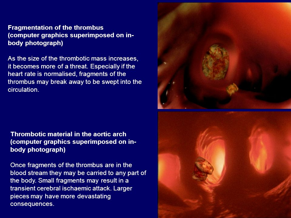 Fragmentation of the thrombus
