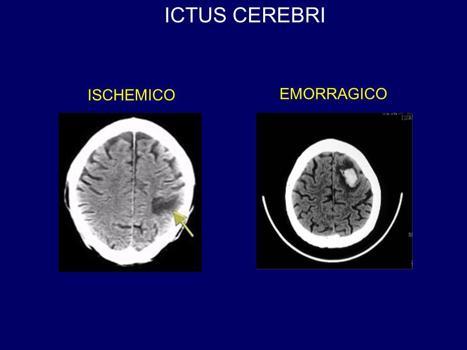 ICTUS CEREBRI ISCHEMICO EMORRAGICO