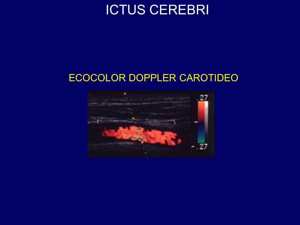 ECOCOLOR DOPPLER CAROTIDEO