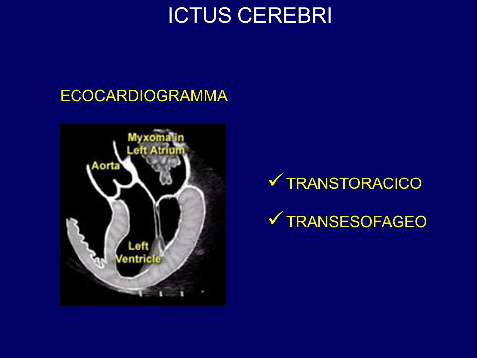 ICTUS CEREBRI ECOCARDIOGRAMMA TRANSTORACICO TRANSESOFAGEO