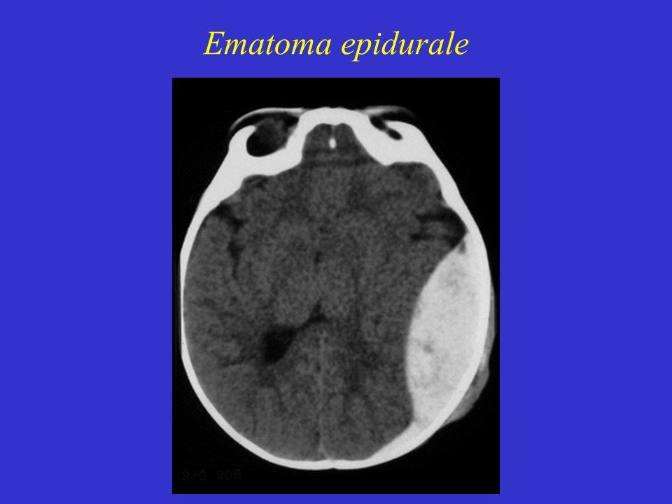 Ematoma epidurale