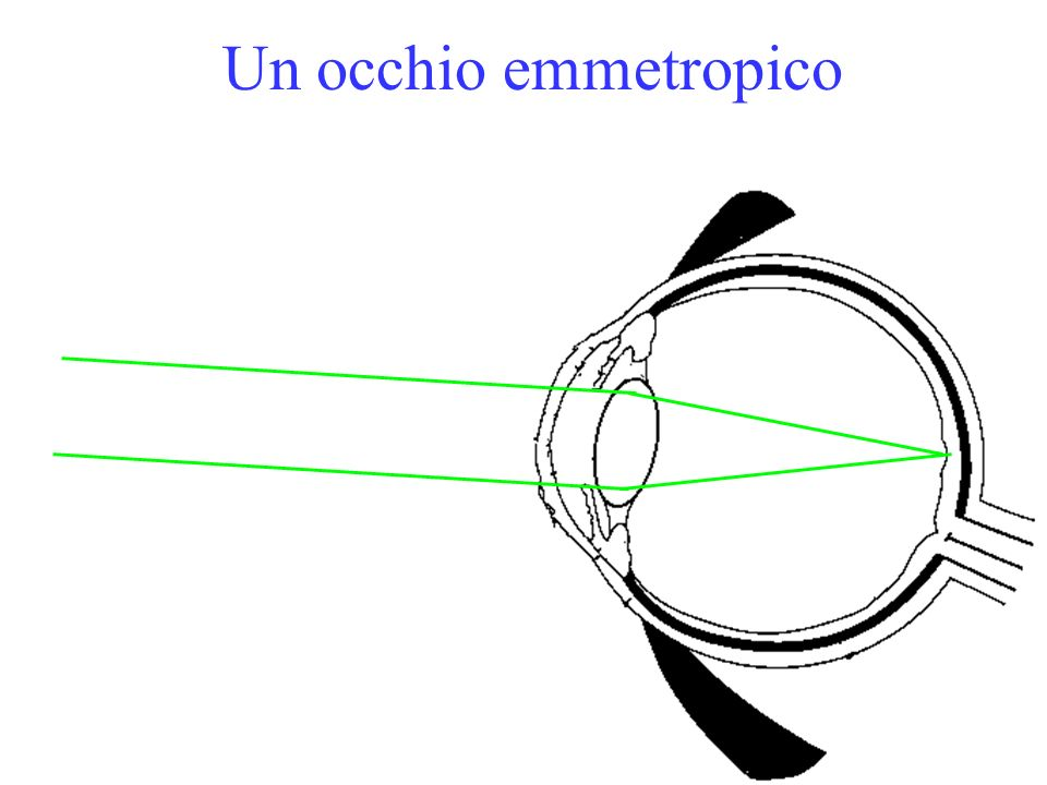 Un occhio emmetropico