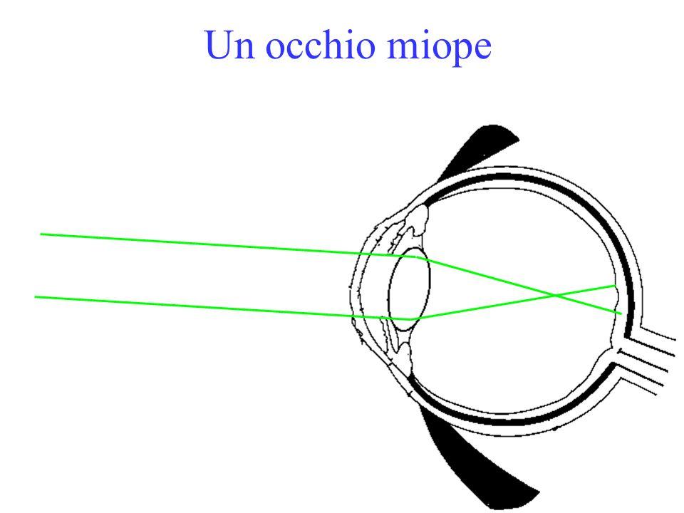 Un occhio miope