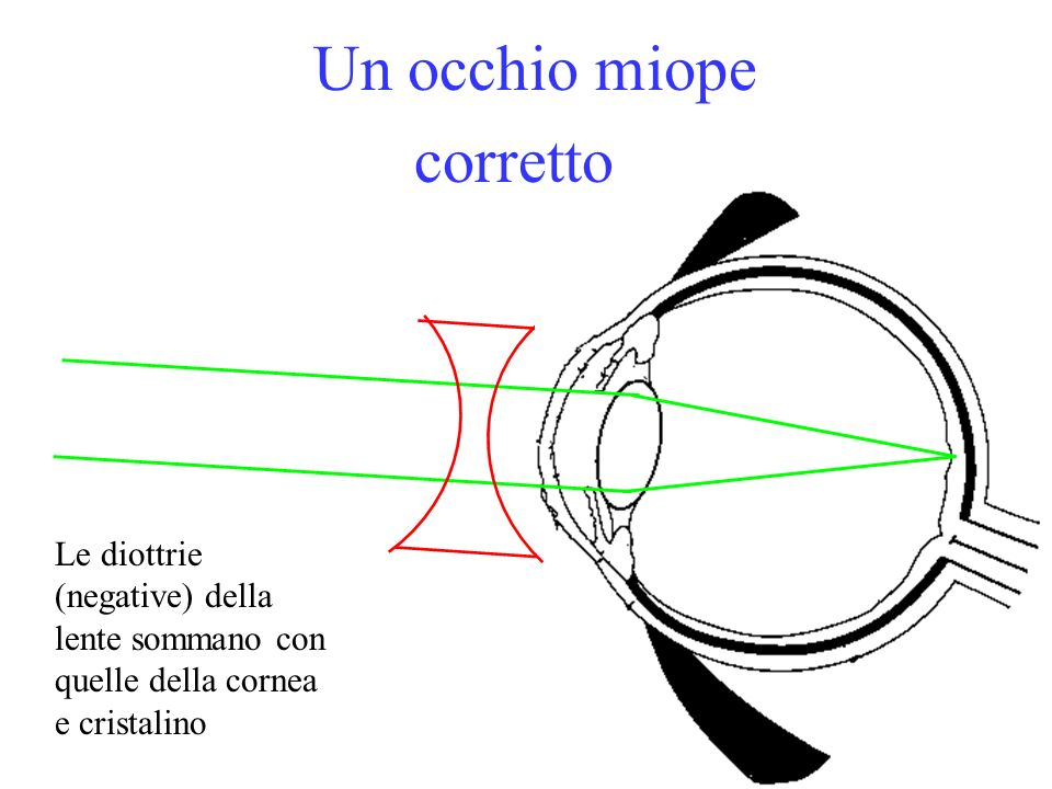 Un occhio miope corretto