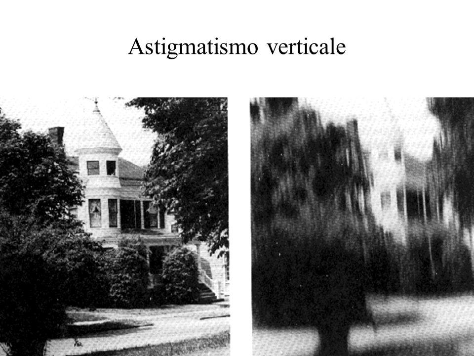 Astigmatismo verticale
