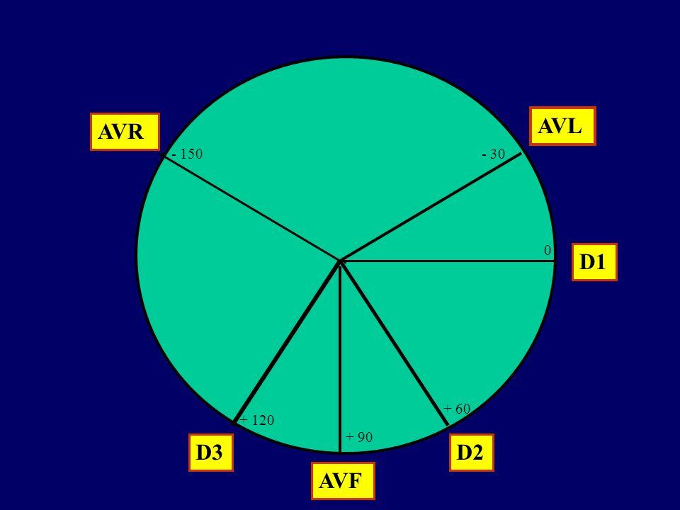 . AVL AVR - 150 - 30 D1 + 60 + 120 + 90 D3 D2 AVF