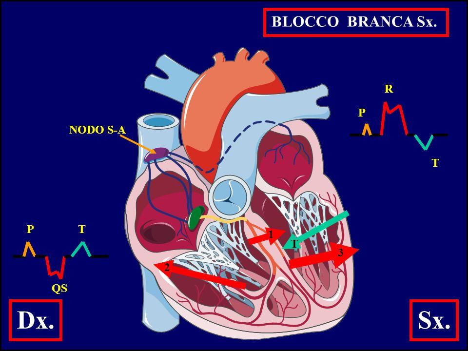 BLOCCO BRANCA Sx. R P NODO S-A T P T 1 T 3 2 QS Dx. Sx.