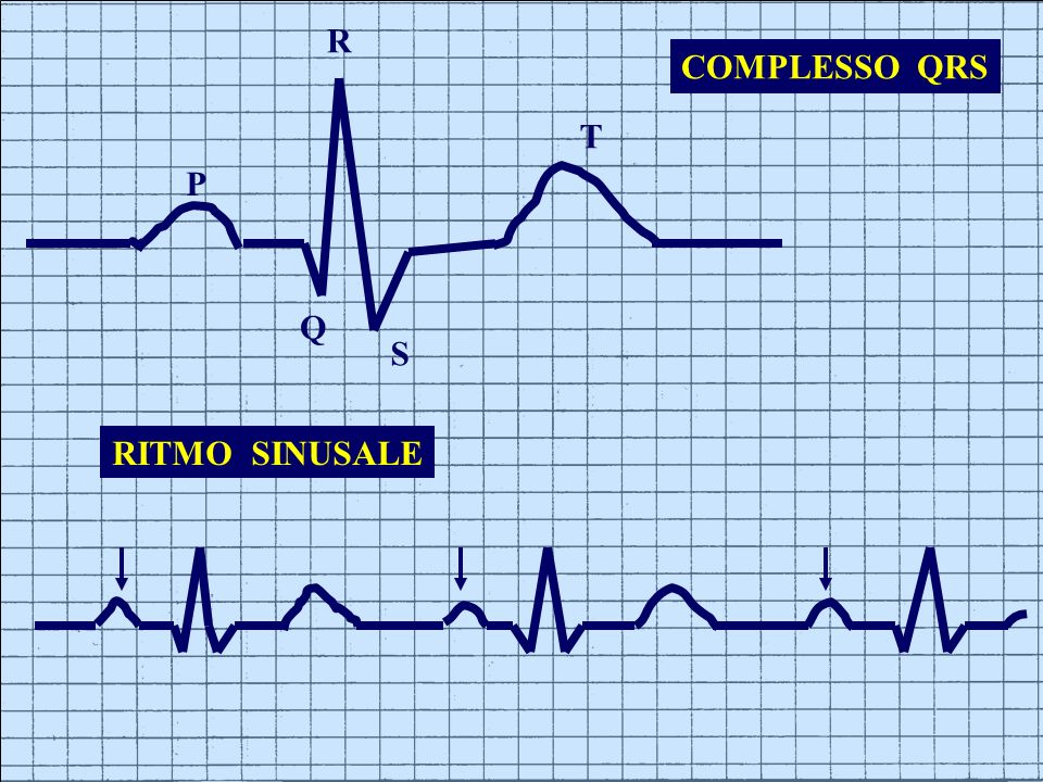 R COMPLESSO QRS T P Q S RITMO SINUSALE