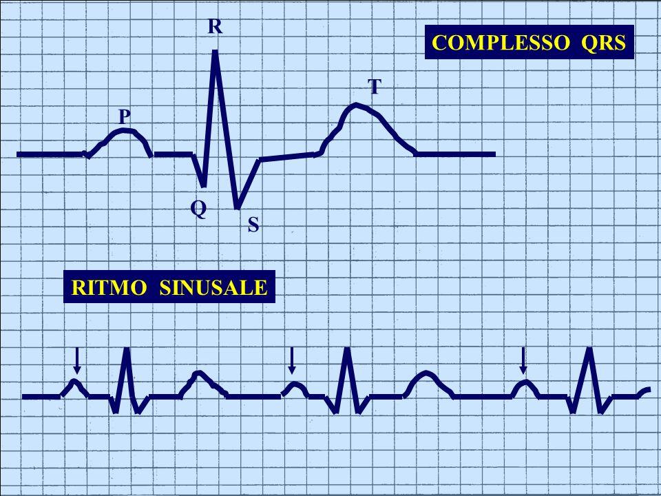 R COMPLESSO QRS T P Q S RITMO SINUSALE