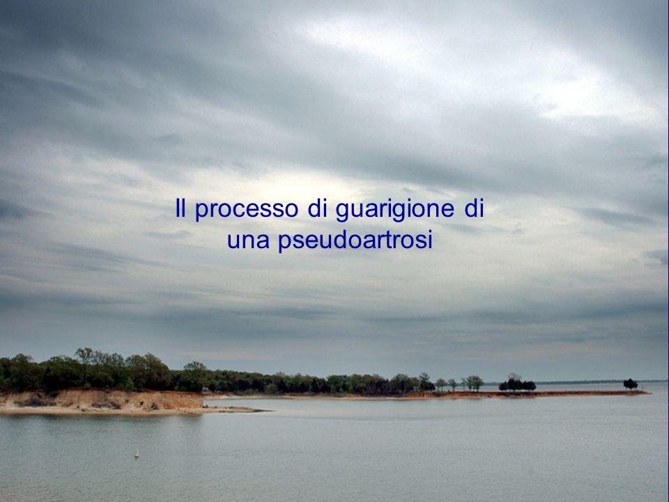 Il processo di guarigione di una pseudoartrosi