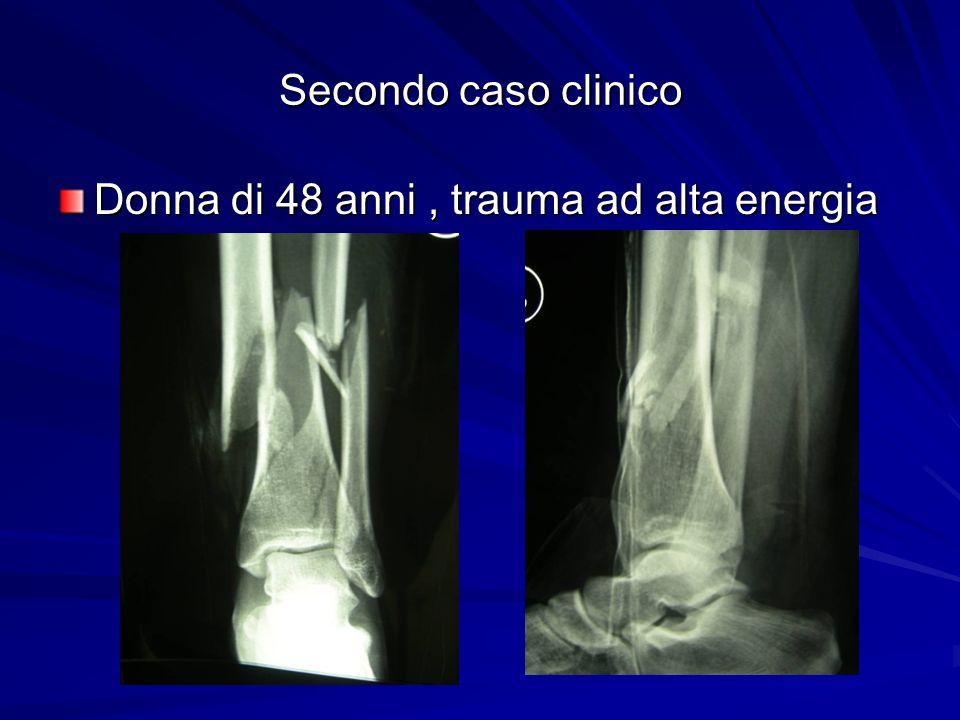 Secondo caso clinico Donna di 48 anni , trauma ad alta energia