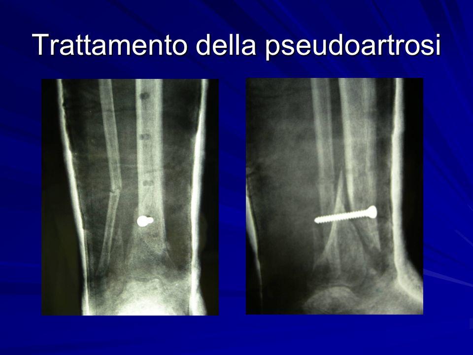 Trattamento della pseudoartrosi