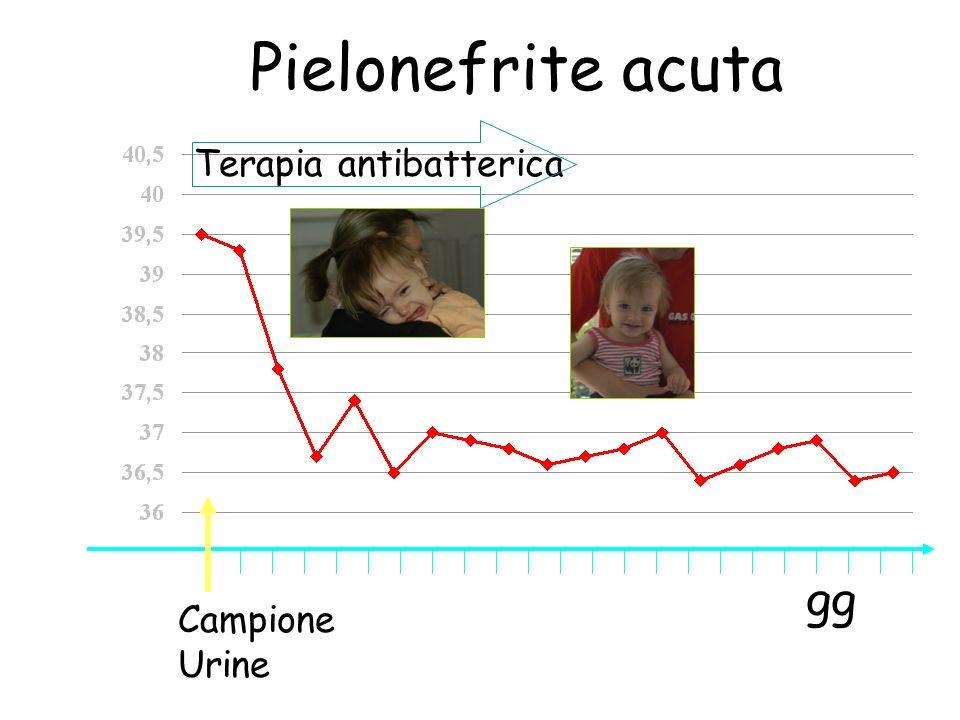 Pielonefrite acuta Terapia antibatterica °C gg Campione Urine