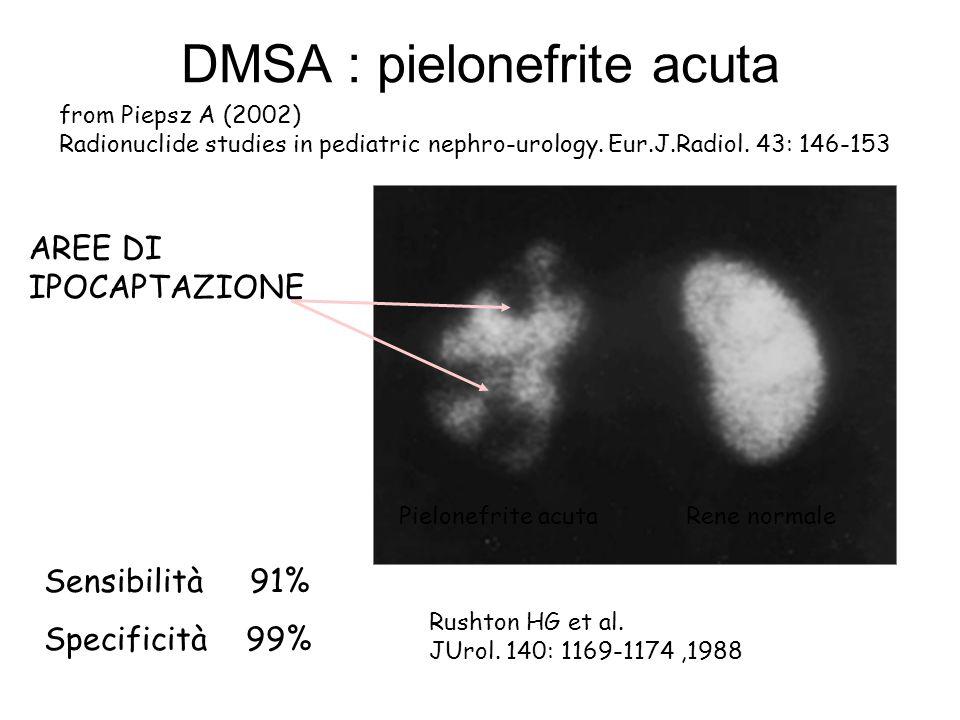 DMSA : pielonefrite acuta