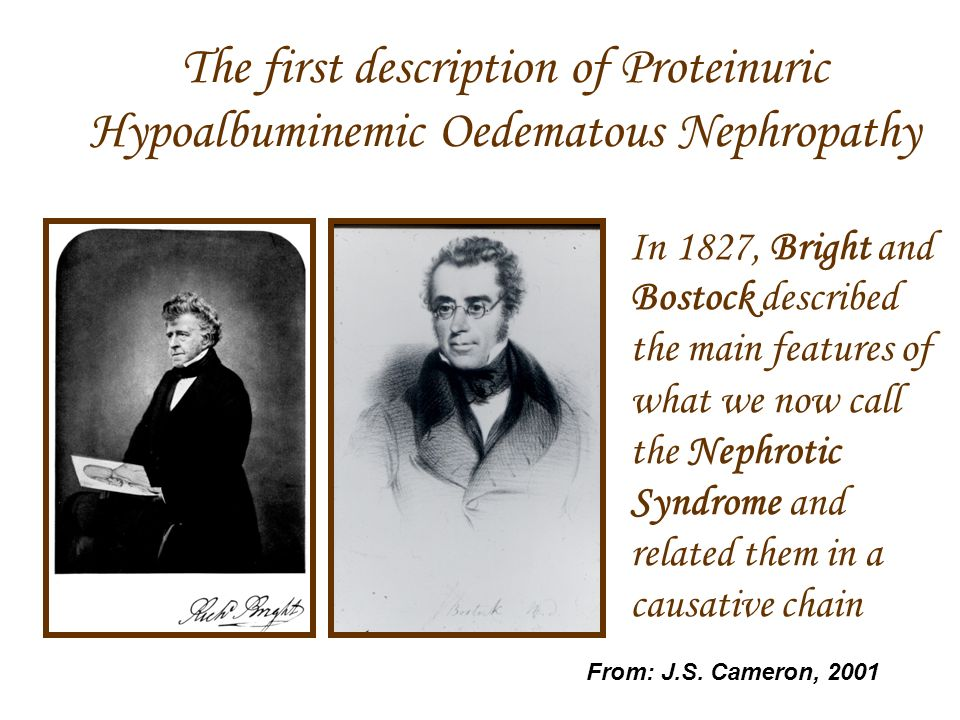 The first description of Proteinuric Hypoalbuminemic Oedematous Nephropathy