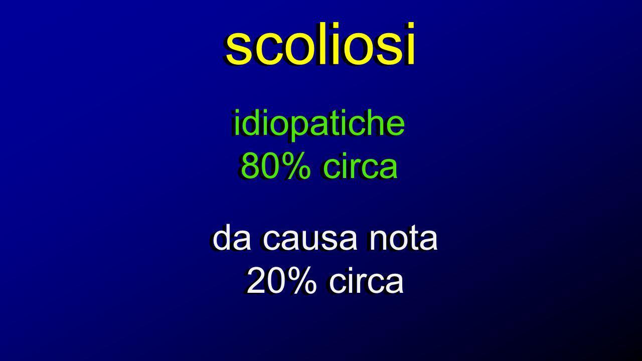 scoliosi idiopatiche 80% circa da causa nota 20% circa