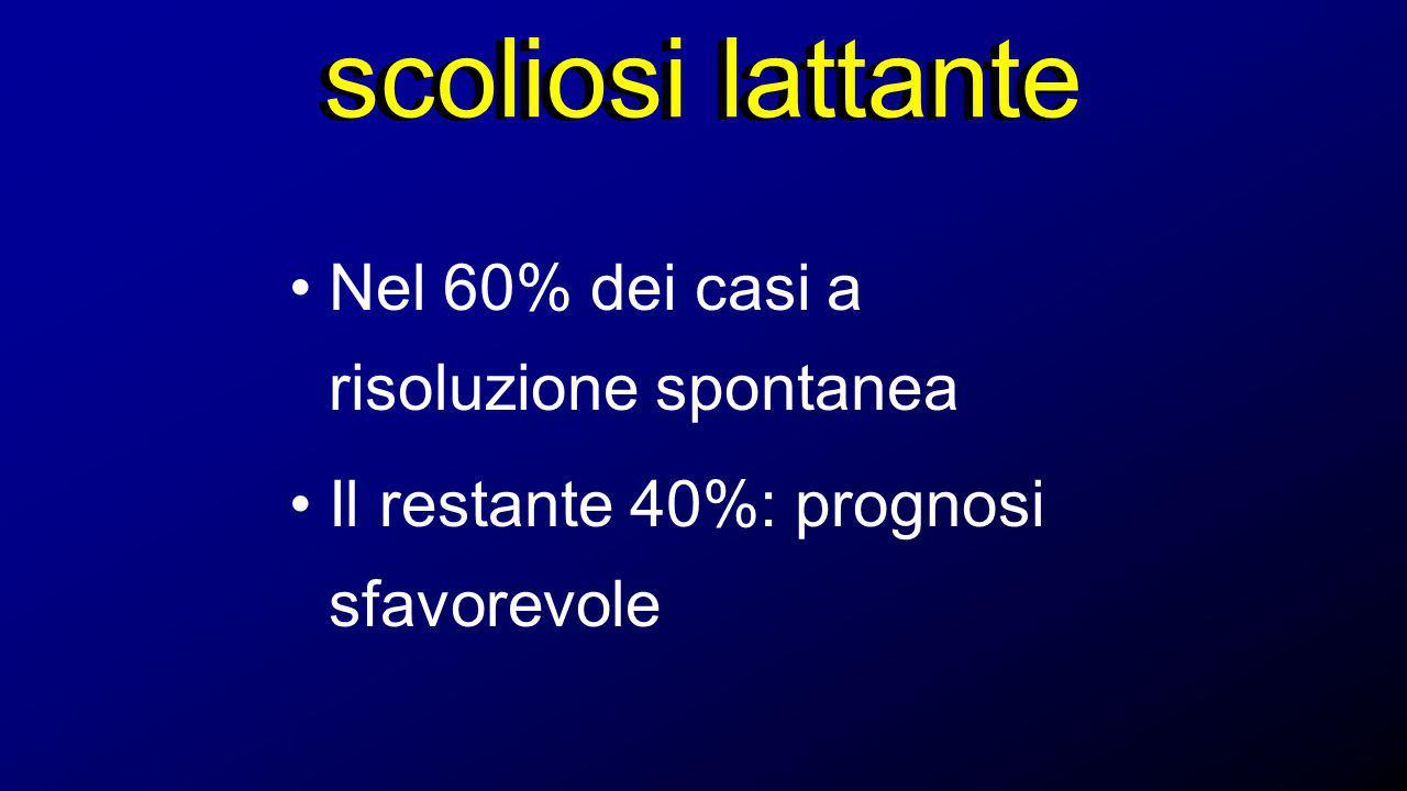 scoliosi lattante Nel 60% dei casi a risoluzione spontanea