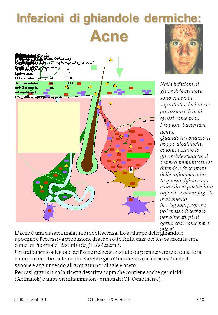 Infezioni di ghiandole dermiche: Acne