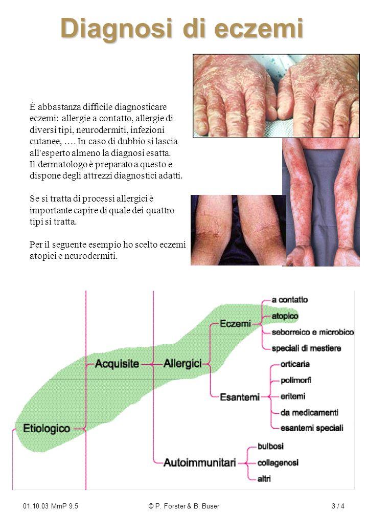 Diagnosi di eczemi