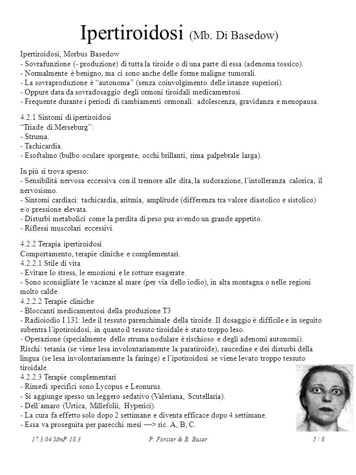 Ipertiroidosi (Mb. Di Basedow)