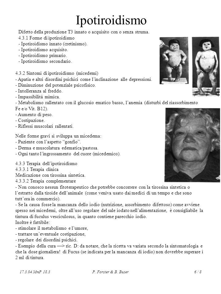 Ipotiroidismo Difetto della produzione T3 innato o acquisito con o senza struma. 4.3.1 Forme di ipotiroidismo.