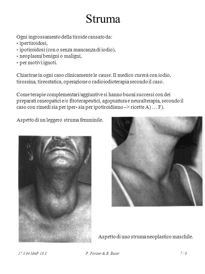 Struma Ogni ingrossamento della tiroide causato da: - ipertiroidosi,